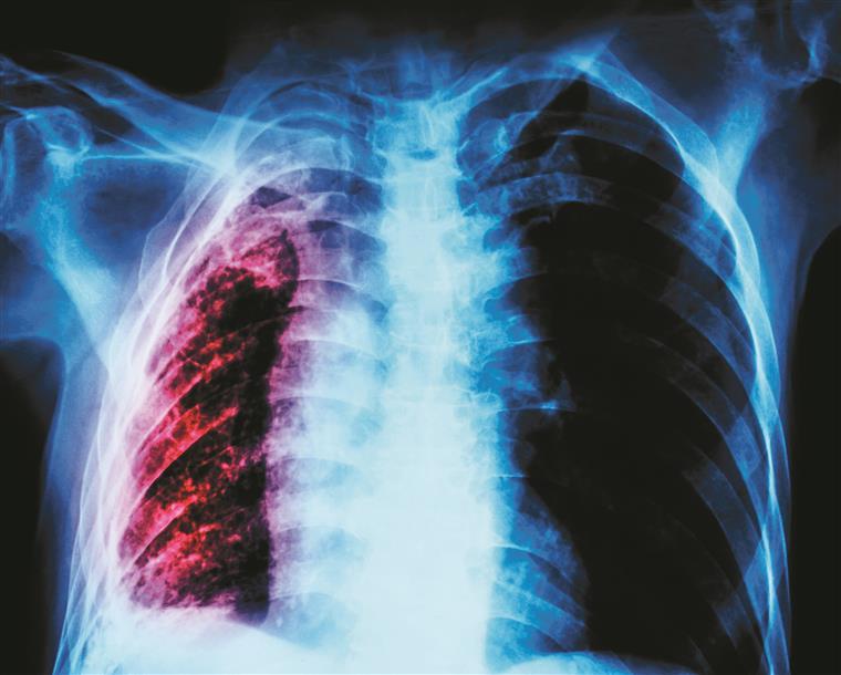 Artigos tuberculose