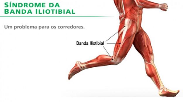 Síndrome da Banda Iliotibial – pelo especialista running em